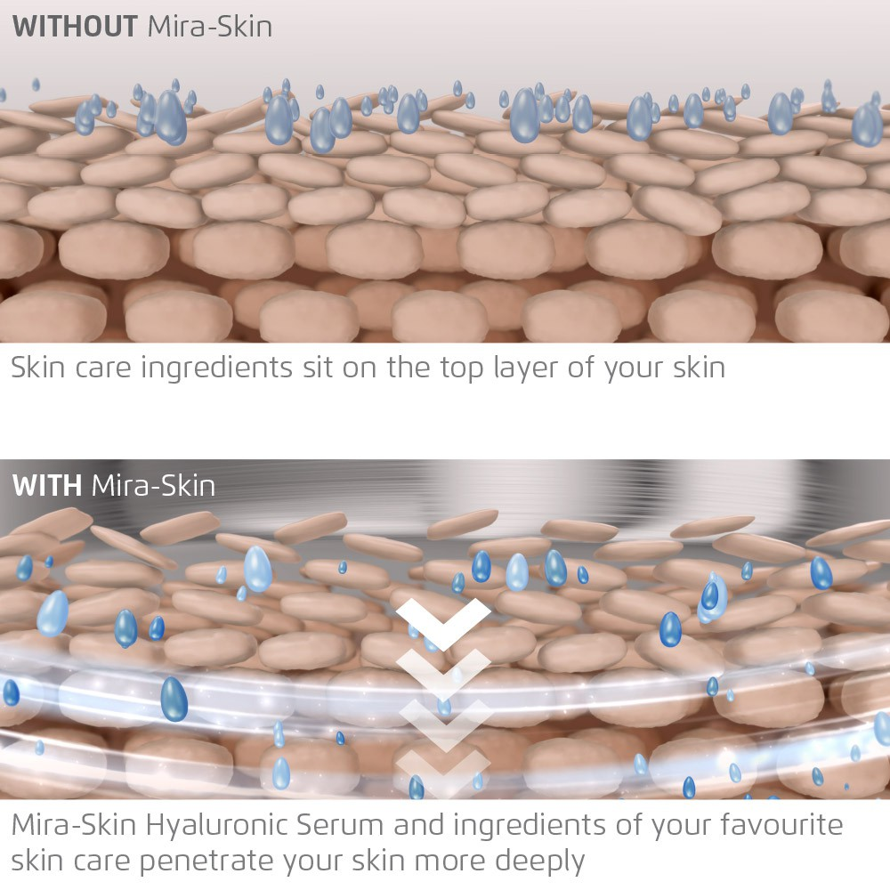 shows in two pictures how the Mira-Skin deeply infuses ingredients into the skin