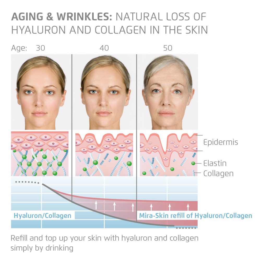 Natural loss of Hyláluron and Collagen in the skin by ageing